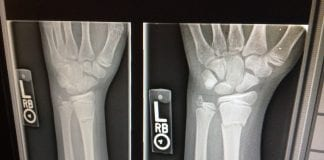 xray broken arms work injury